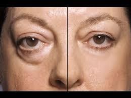 eye tips